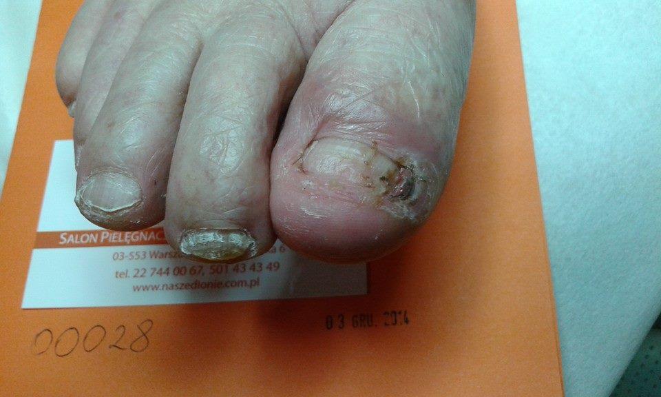 wrastajace paznokcie stan zapalny