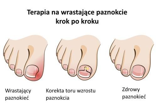 terapia na wrastający paznokieć