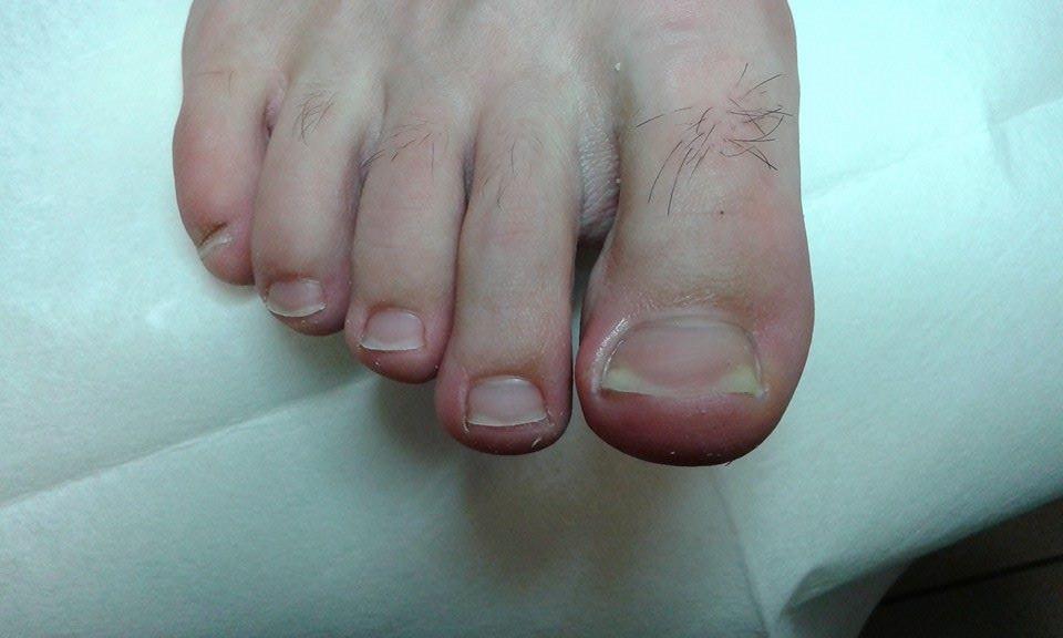 wrastajace paznokcie