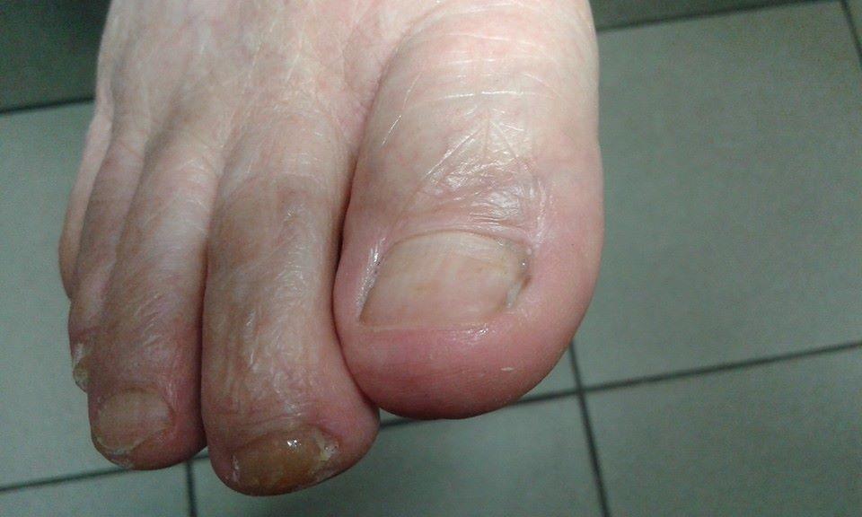 wrastajace paznokcie stan zapalny po zabiegu